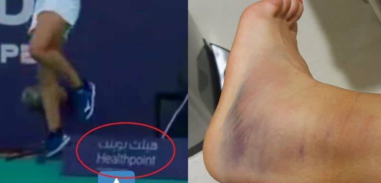 Arrepiante: Flipkens mostra como ficou o tornozelo e foi atendida no hospital da publicidade que a lesionou